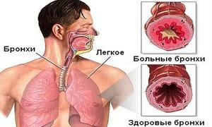 hipertenzijos ryšys su stuburu